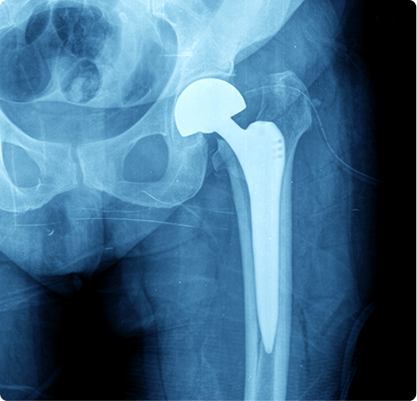 Hip Replacement surgery - hip Resurfacing - Hip Arthritis Treatment - Ortho Surgeons