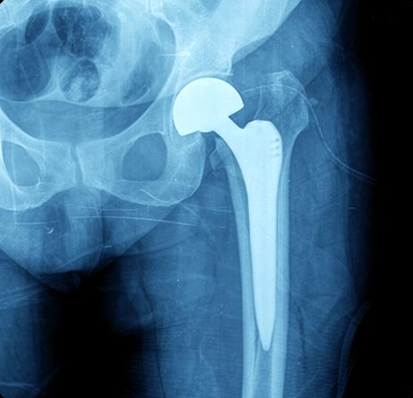 Hip Replacement / Resurfacing | Hip Arthritis Treatment