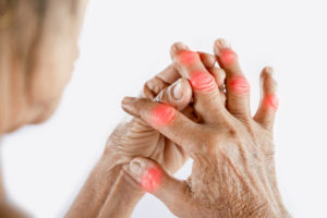 woman hand suffering from joint pain with gout in finger