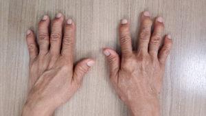 Hand Reconstructive Surgery