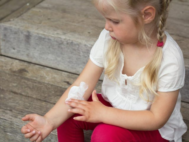 The Complete Guide for Eczema in Children