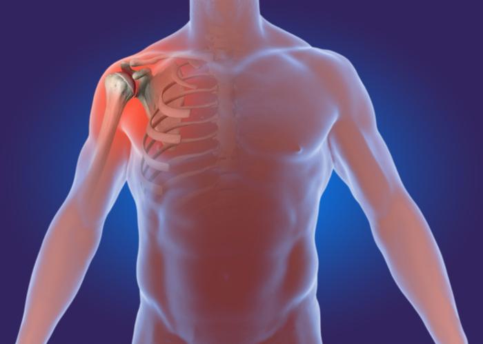 What Is Degenerative Arthritis Of The Shoulder Advanced Bone Joint