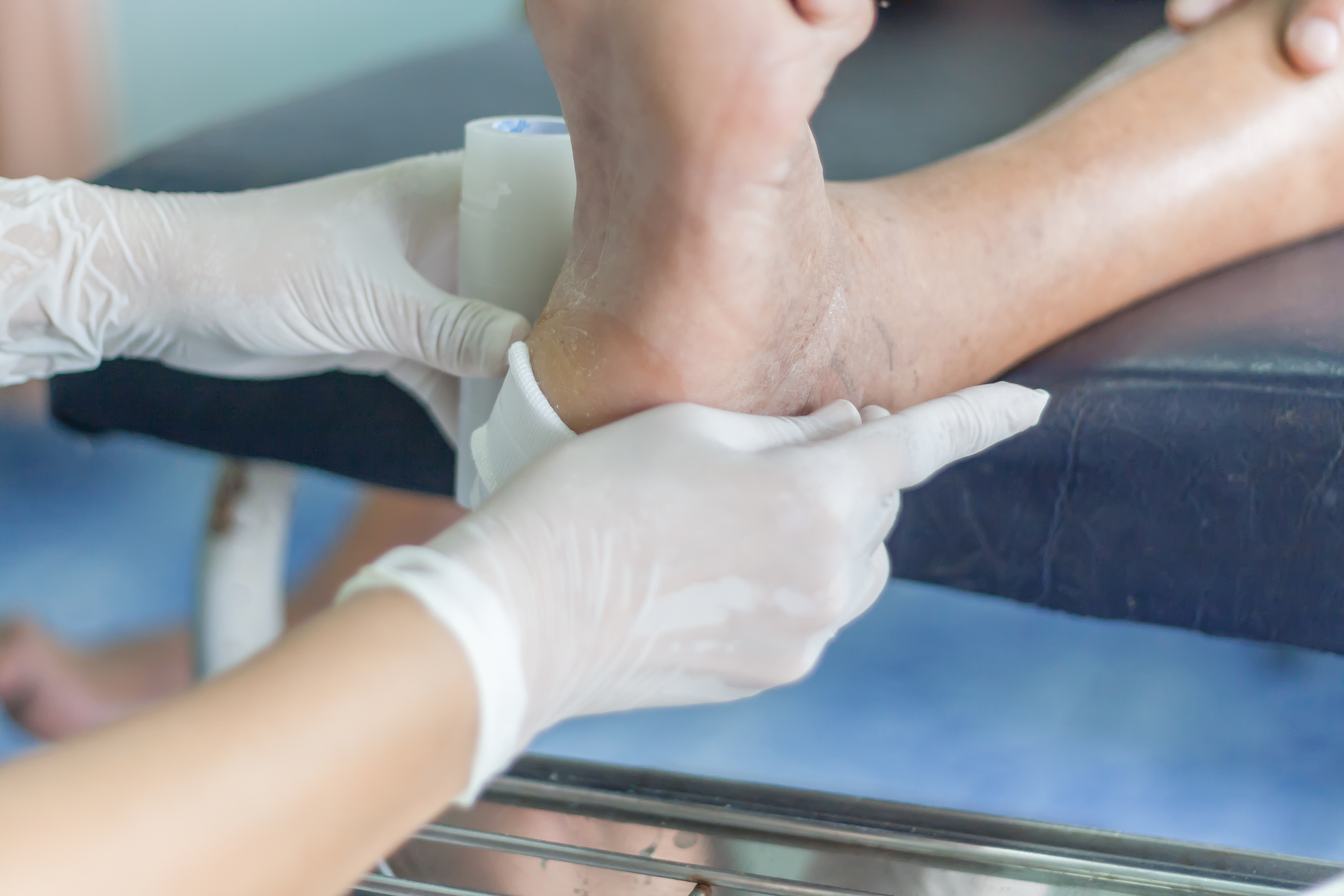 Diabetes And Wound Care Of The Feet Advanced Bone Joint