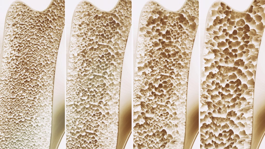 23++ How does the muscular system affect osteoporosis info