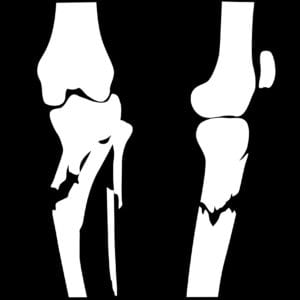 Bone Fractures - orthopedic care