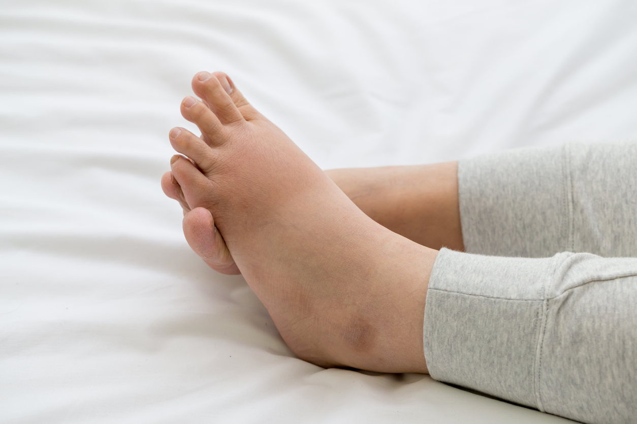 Top Causes Of Foot And Ankle Swelling Advanced Bone Joint
