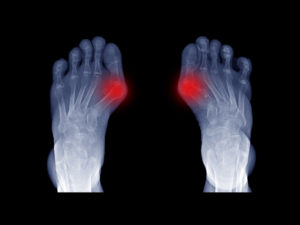 bunion treatment near me