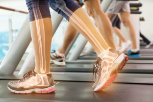 An illustration of a woman's bones in her legs as she walks on a treadmill.