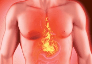 GERD - Acid Reflux - Natural Balance Wellness Medical Center
