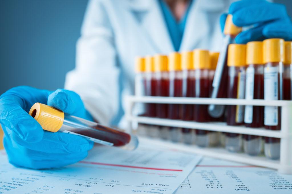 Blood Panel Test