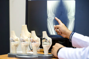 A doctor reviewing a medical image with a model of the human bone next to it.