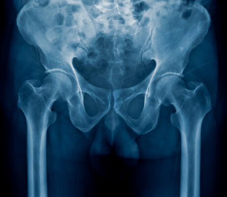 The Joint Replacement Institute - Diagnostic Imaging Naples, FL