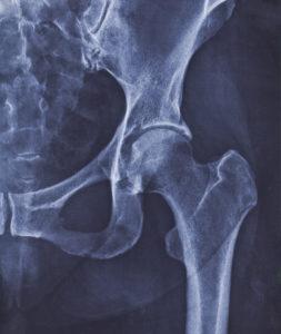 Hip Surgeries
