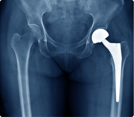 Hip Replacement - Knee Replacement - Joint Pain - Orthopedic Surgeon Plano, TX