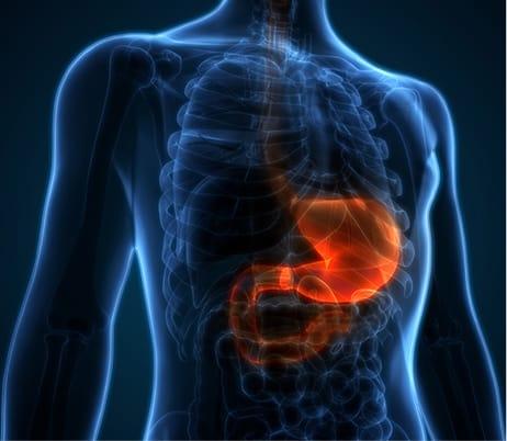 Evergreen Endoscopy Center - colon cancer screening - gastroenterologists near me - GI doctors - colon cancer - Colonoscopy