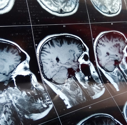 Imaging Partners of St. Peters - orthopedic mri - mri scans - MRI - mri results - understanding mri results - mri near me - mri imaging - orthopedic mri st. Charles County