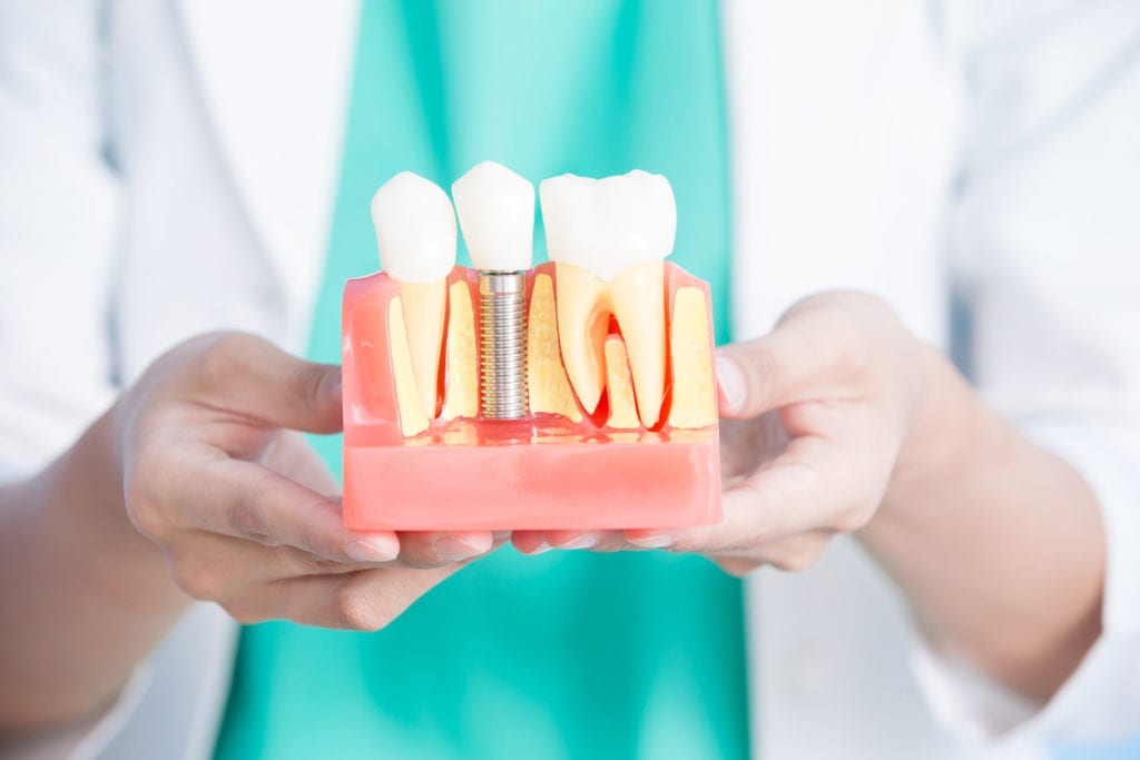 Dental Implants For Low Income Patients