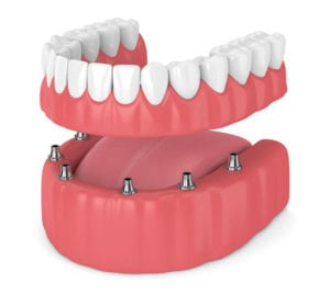 Dentures vs. Dental Implants