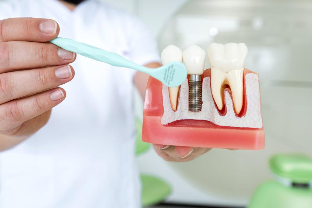 Dentist demonstrating a dental implant