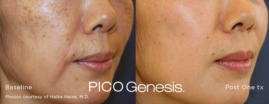 Enlighten Pico Genesis - Before & After