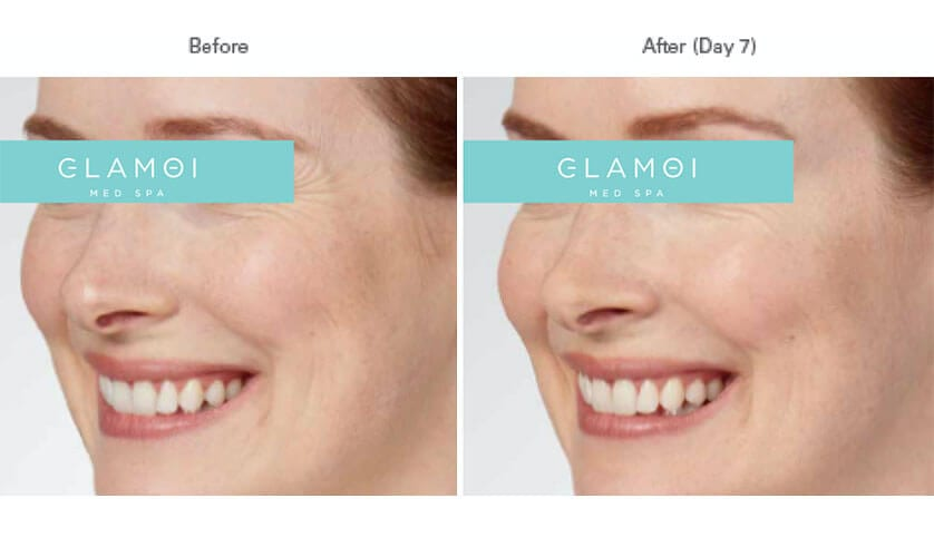 Botox - Crows-Feet - Before & After