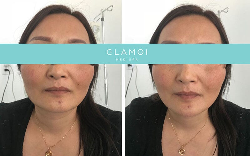 Dermal Fillers - Before & After
