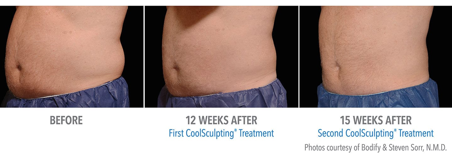 CoolSculpting - Before & After