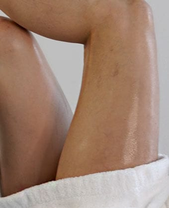 Laser Vein Treatments in NYC - Laser Vein Treatments - Glamoi Med Spa - Medical Spa New York, NY