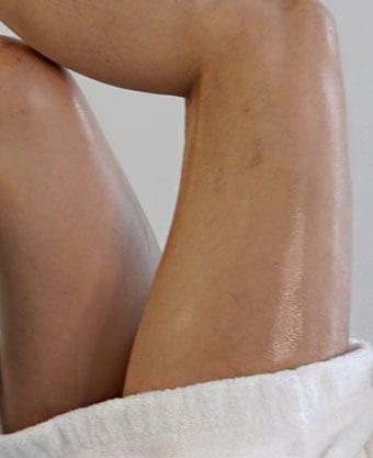 Glamoi Med Spa - Spider Vein Treatments Manhattan - Spider Vein - Spider Vein Treatments NYC