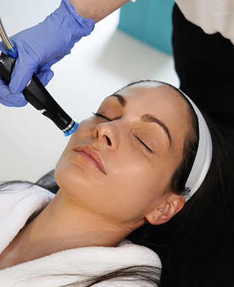 Limelight IPL Photofacial NYC - Glamoi Med Spa - sun spot removal - Photofacials - Limelight IPL - ipl photofacial