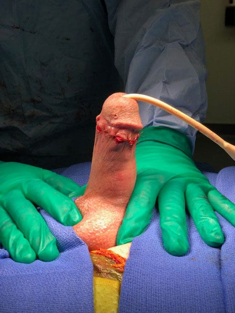 Penile Implant - After