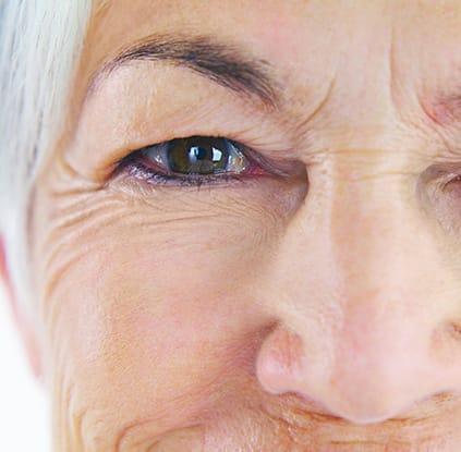 Cornea Care - Keratoconus - Pterygium - Corneal Abrasion - Corneal Edema - Southwest Eye Care