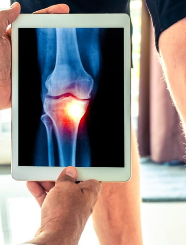 Articular Cartilage Restoration - Orthopedic Surgeon St. Louis, MO - orthopedic doctor near me - orthopedic surgeon near me - orthopedic near me - orthopedic specialist - bone doctor - dr jason browdy - dr browdy