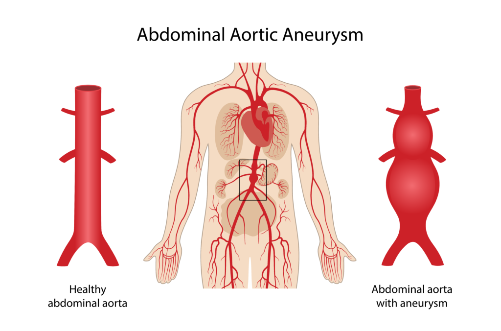 what is infrarenal abdominal aortic aneurysm