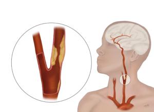 Carotid-Artery-Disease