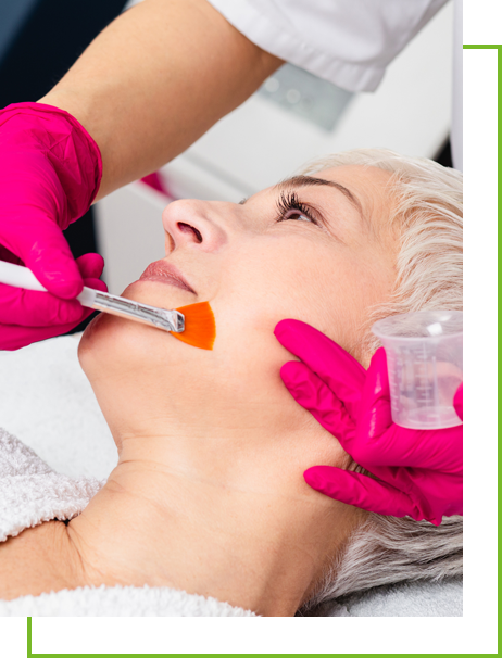 Chemical Peels  near me - Chemical Peels Concord - Chemical Peels Cambridge - Chemical Peels  Waltham, MA - Dermatology Associates of Concord