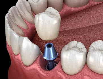 tooth implant - dentist Hannibal MO - Hannibal Dental Group - dentist near me - emergency dentist - dental clinic near me - Endodontics - dental implants near me - Invisalign near me - Teeth Whitening - Teeth Whitening