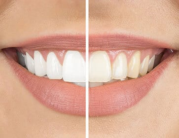 Teeth Whitening - Teeth Whitening Dentist - dentist Hannibal MO - Hannibal Dental Group - dentist near me