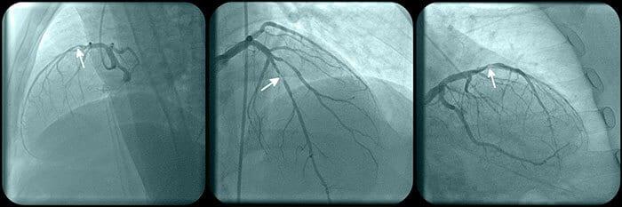 Coronary Angiography - Echocardiogram near me - Cardiac Tests - Dr. Alireza Nazeri - Cardiologist Houston - Cardiologist Houston Sugar Land - Cardiologist near me - electrophysiologist near me - heart care