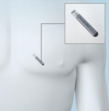 Implantable Loop Recorder - Dr. Alireza Nazeri - Cardiologist Houston - Cardiologist Houston Sugar Land - Cardiologist near me - electrophysiologist near me - heart care