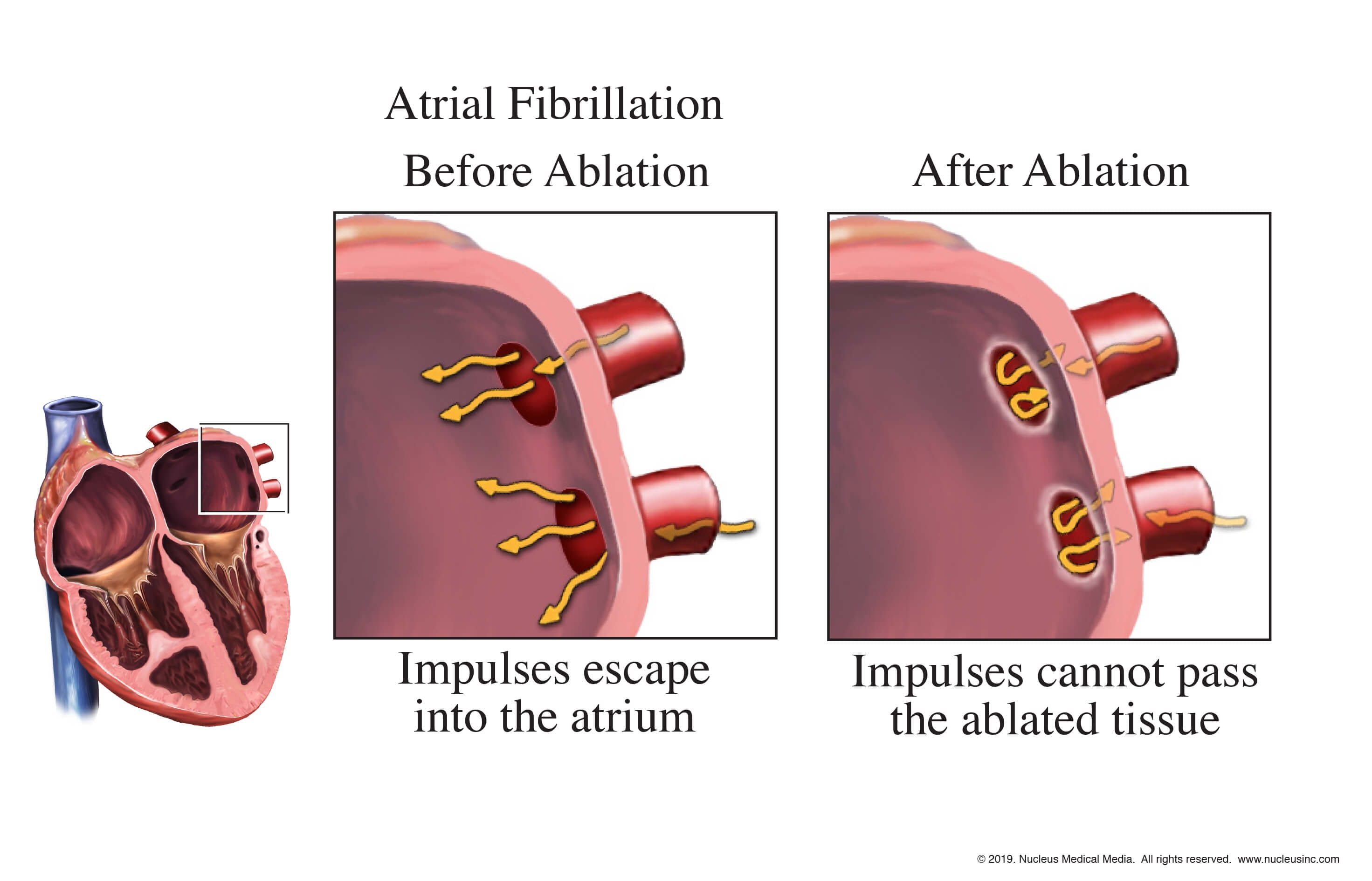 Atrial fibrillation corrected after ablation - EP Study - Catheter Ablation - Arrhythmias - Dr. Alireza Nazeri