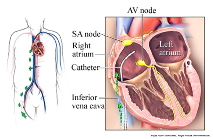 Catheter Placement in the Heart - EP Study - Catheter Ablation - Arrhythmias - Dr. Alireza Nazeri