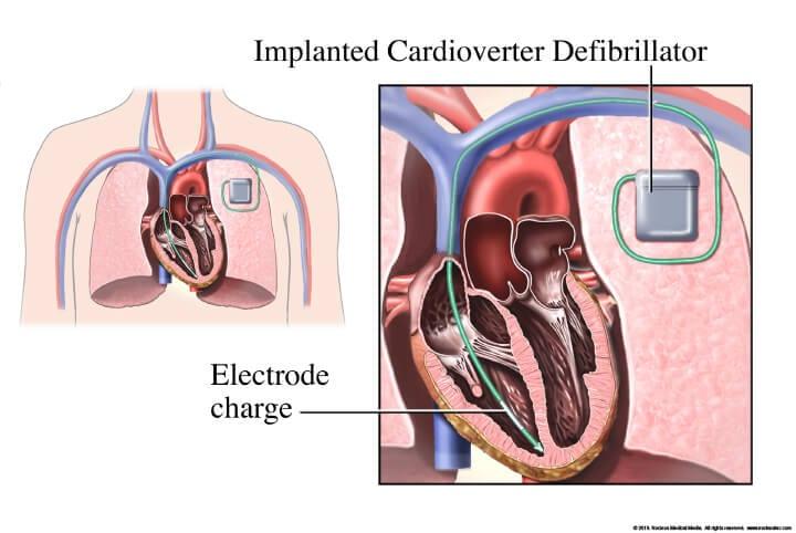 Dr. Alireza Nazeri - Cardiologist Houston - Cardiologist Houston Sugar Land - Cardiologist near me - electrophysiologist near me - heart care - Implantable Cardioverter Defibrillator near me - Implantable Cardioverter Defibrillator Houston, TX - Cardiac Defibrillator