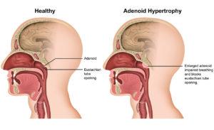 Adenoidectomy graphic