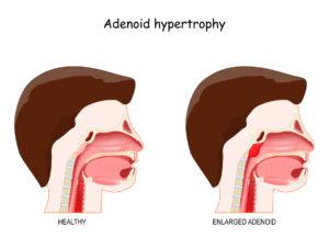 Graphic of adenoids