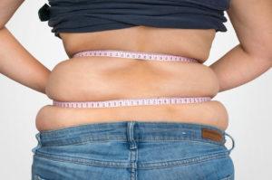 obesity - diabetes