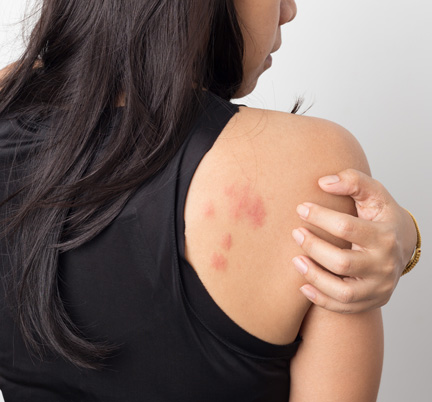 Eczema treatments near me - Hives Treatment - Allergists Plainfield, IL - Oak Brook Allergists - allergies - allergy treatment near me - Allergists Downers Grove, IL - Allergists Naperville, IL - Allergists Elmhurst, IL