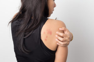 Treatments For Hives