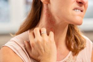 Allergic Reaction Rash