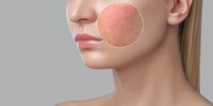 skin allergy treatment near me